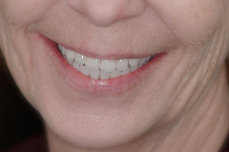 All-on-4 Implant Bridge after