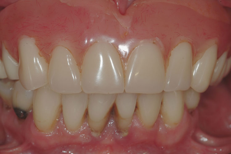 All-on-4 Implant Bridge before