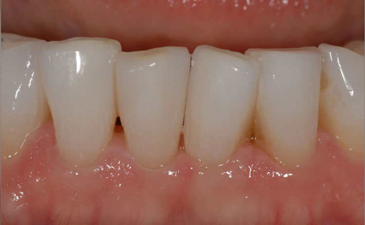 Bonding Composite Fillings after