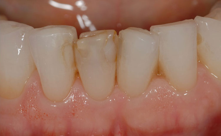 Bonding Composite Fillings before