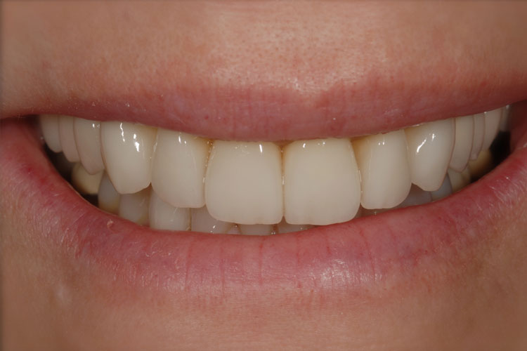 Esthetic Crowns after