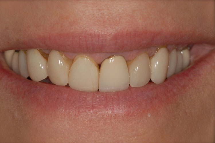 Esthetic Crowns before
