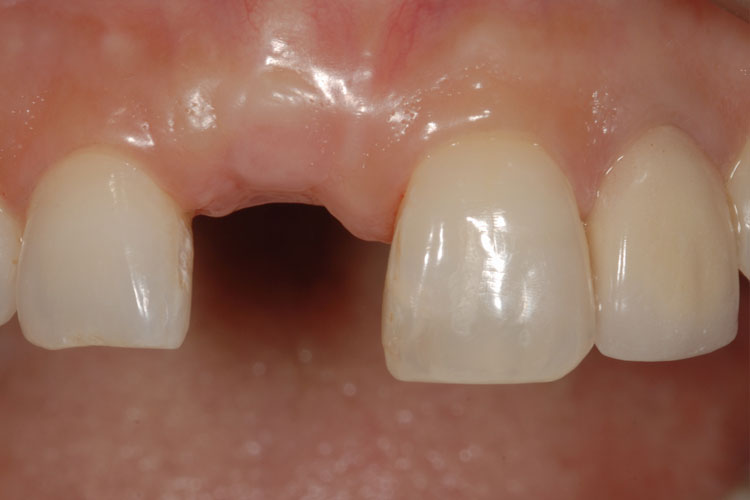 Implant Crown before