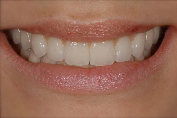Implant Full Mouth Reconstruction after