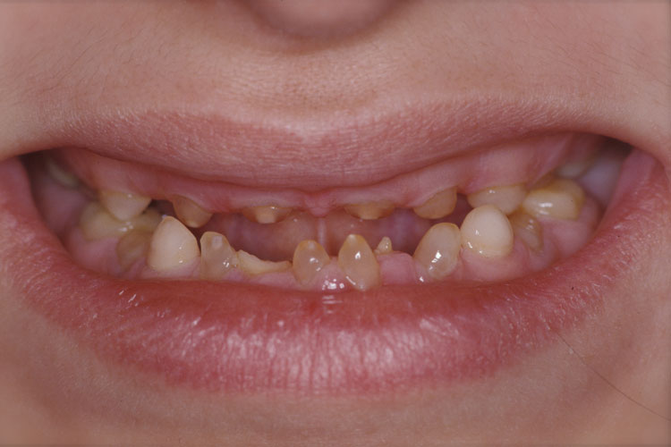 Implant Full Mouth Reconstruction before