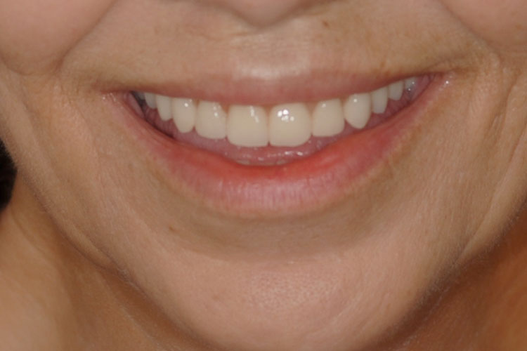 Implant Removable Overdenture after