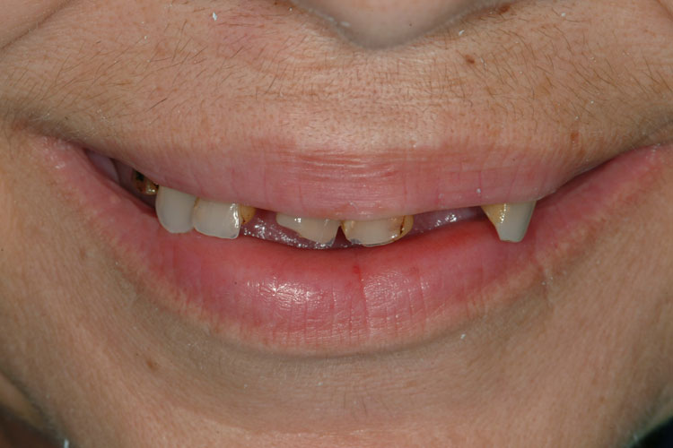 Implant Removable Overdenture before