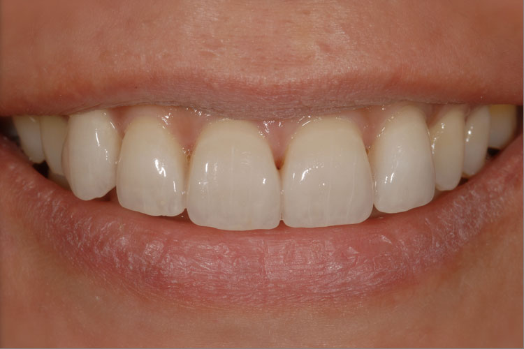 Porcelain Veneer after
