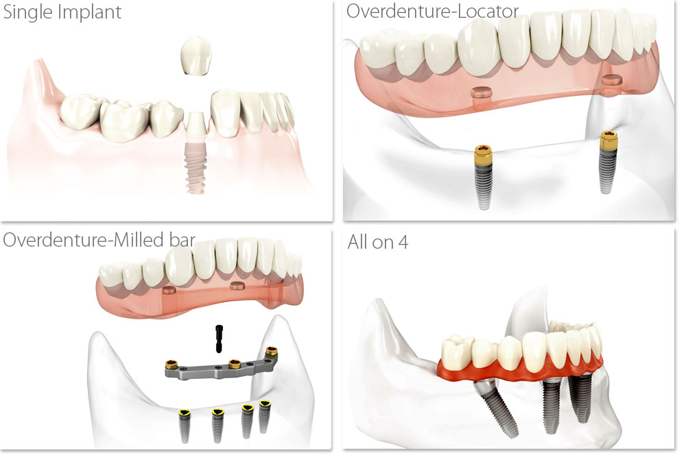 Single Implant, Overdenture-Locator, Overdenture-Milled bar, All on 4